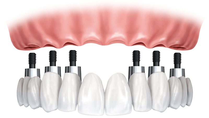 All-On-6 Implant Dentures