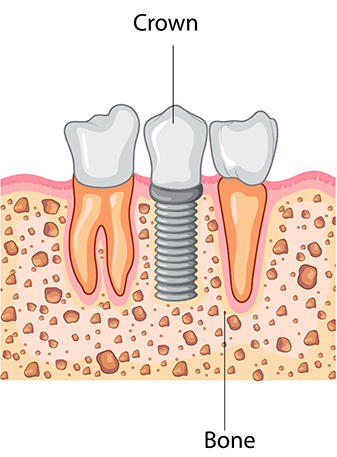 Dental Implant Process: Crown
