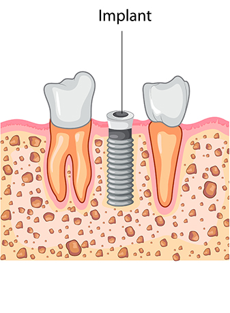 Dental Implant Process: Implant